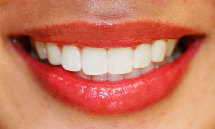 Как должны выглядеть правильные зубы